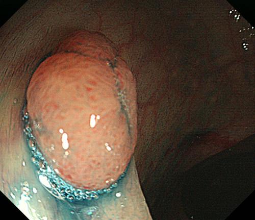 症例1(大腸ポリープ)