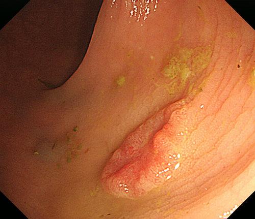 症例2(直腸早期癌)
