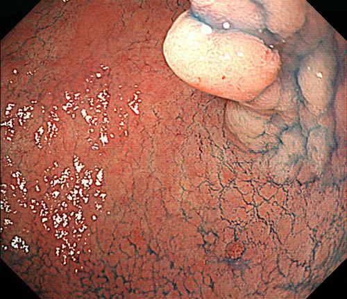 症例3(早期胃癌)